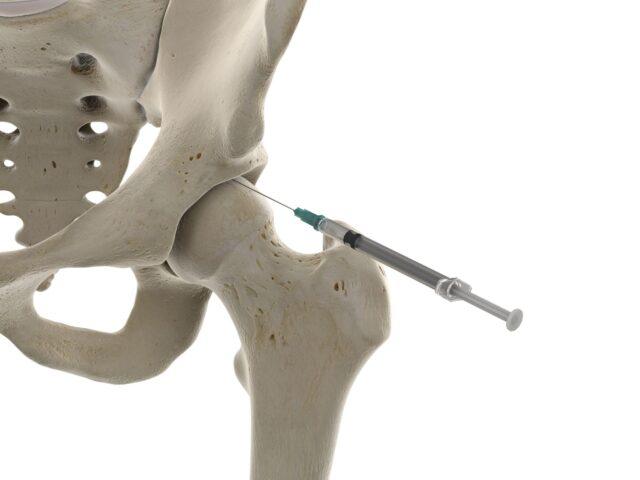 Skeleton System Showing Injection at Hip