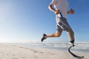 Man Running on a Beach with a Prosthetic Leg