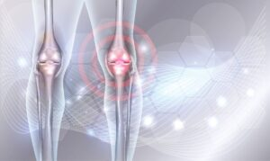 Transparent photo of the knee joint