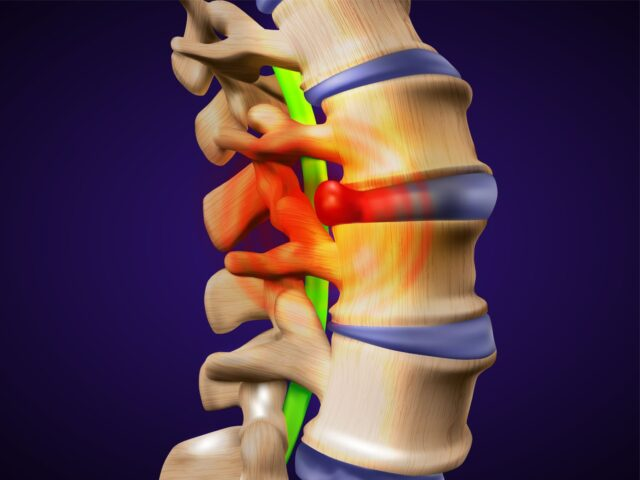 Red Pain Point on a Spinal Cord
