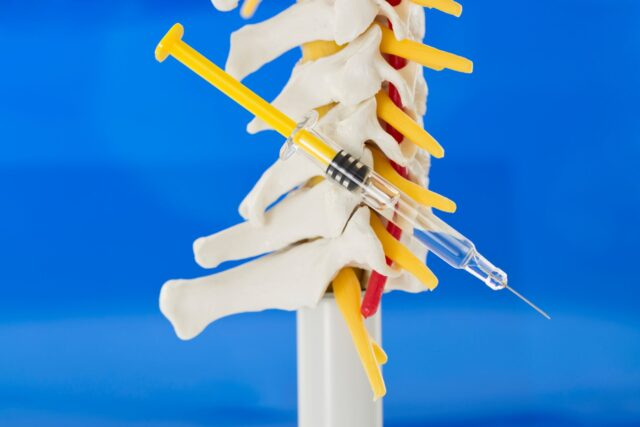 Needle and Spinal Cord